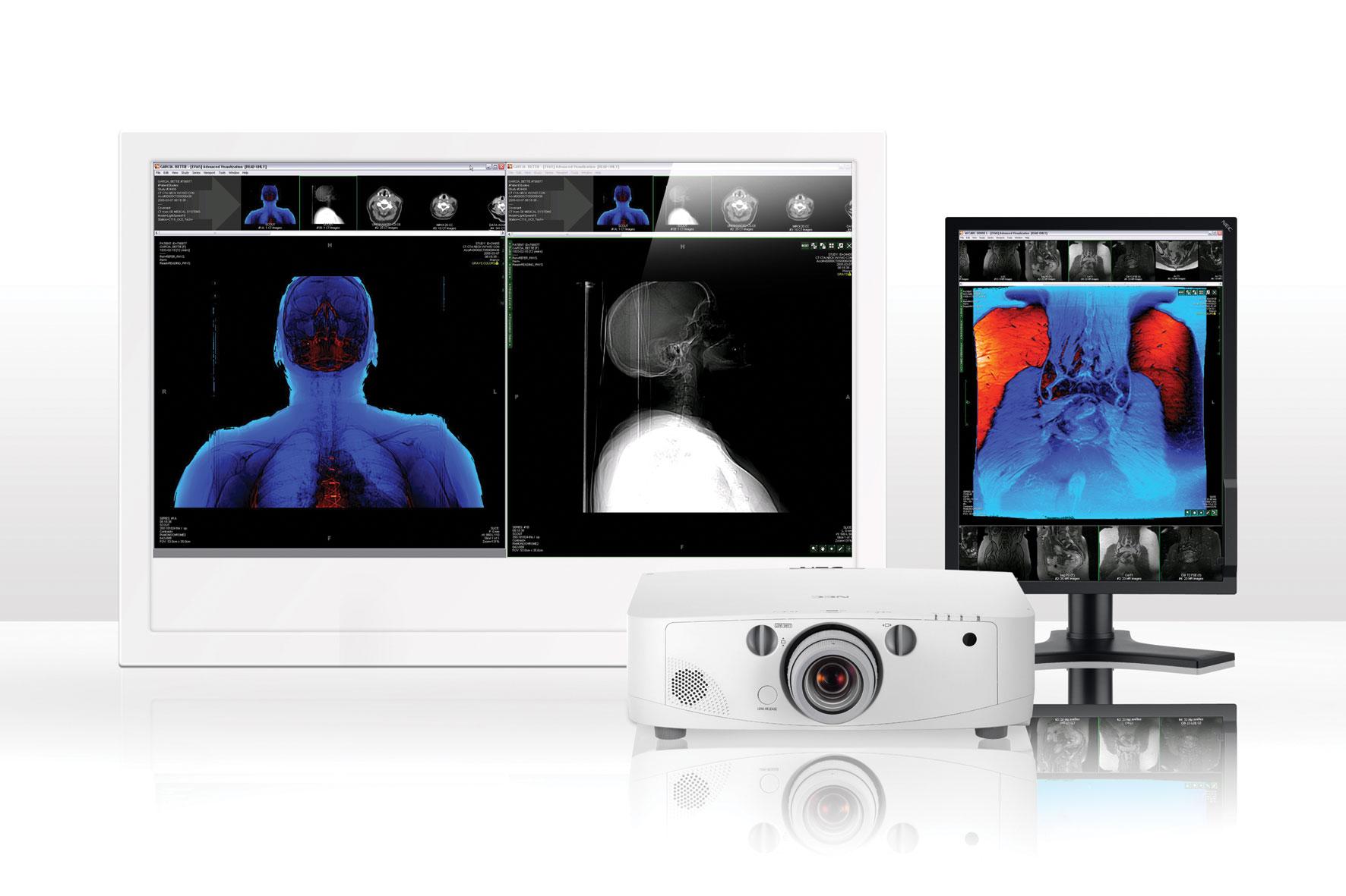 NEC – zaawansowane rozwiązania obrazowania medycznego