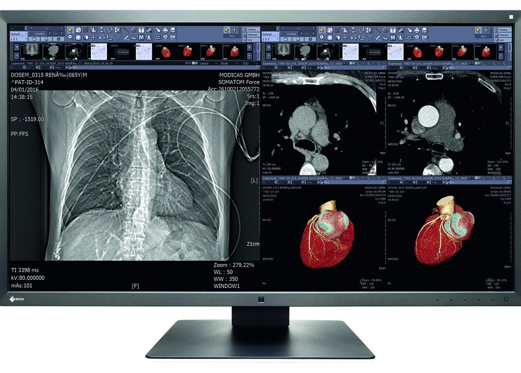 Alstor – ekspert w dziedzinie rozwiązań medycznych